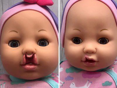 Мајка создава кукли за децата со вродени аномалии да не се чувствуваат изоставени