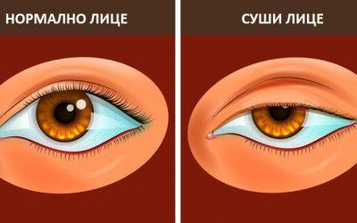 """Што е """"суши лице"""" и 5 начини како да го избегнете"""