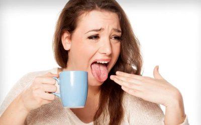 Што да направите кога ќе си го изгорите јазикот?