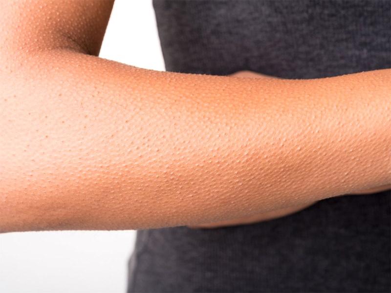Проѕевање, кивање, икање: На кој начин се брани телото и од што?