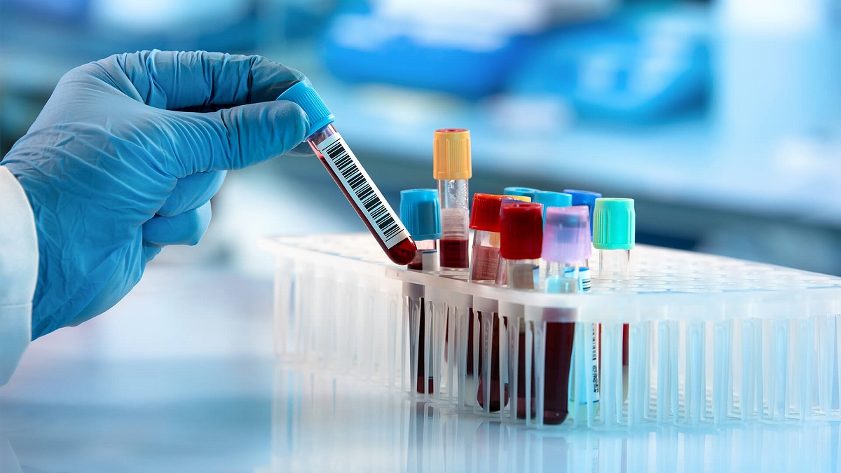 7 испитувања на крвта што треба да ги правите еднаш годишно